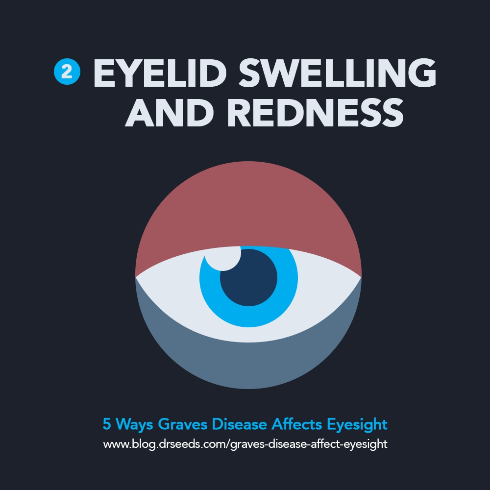 eyelid swelling | 5 Ways Graves Disease Affect Your Eyesight [INFOGRAPHIC]