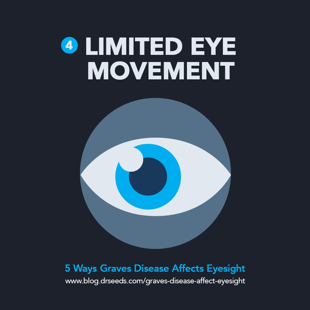 eye movement | 5 Ways Graves Disease Affect Your Eyesight [INFOGRAPHIC]