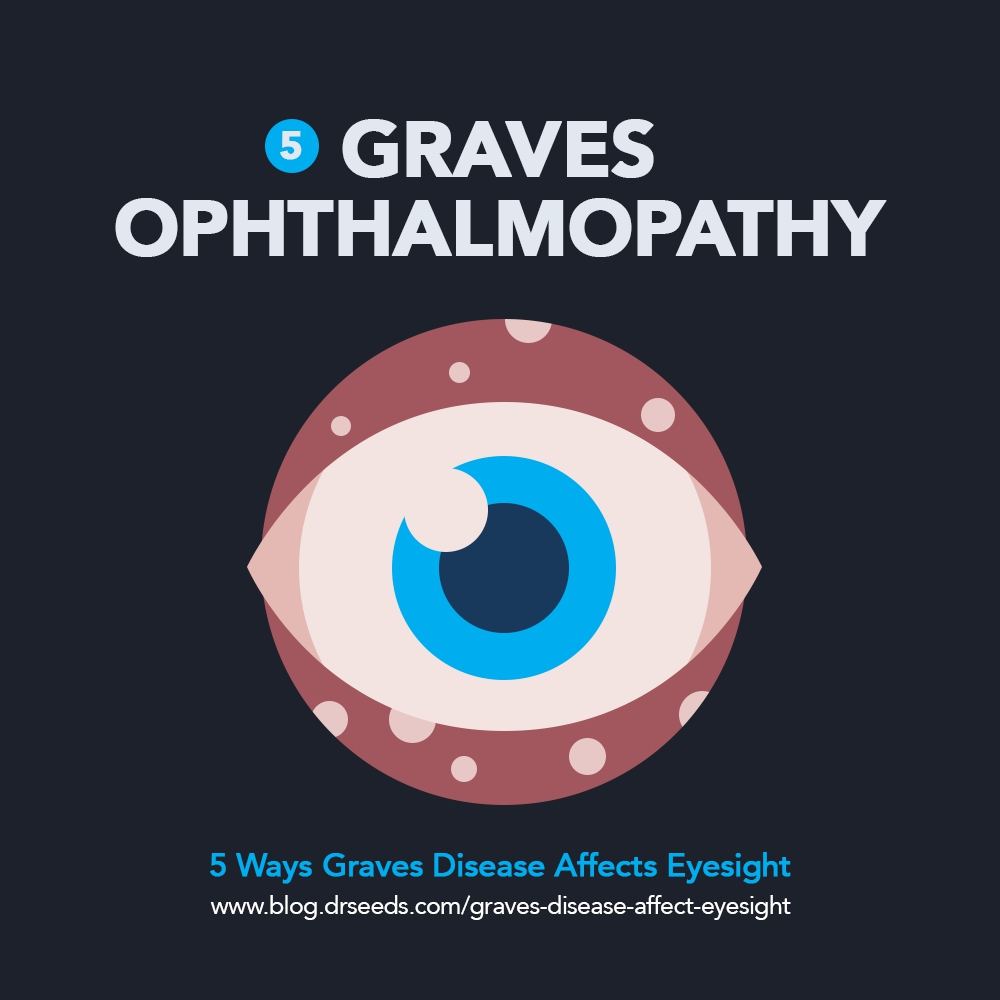 graves disease | 5 Ways Graves Disease Affect Your Eyesight [INFOGRAPHIC]